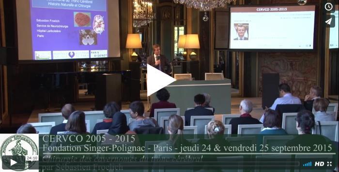 Vidéo sur la chirurgie des cavernomes du tronc cérébral